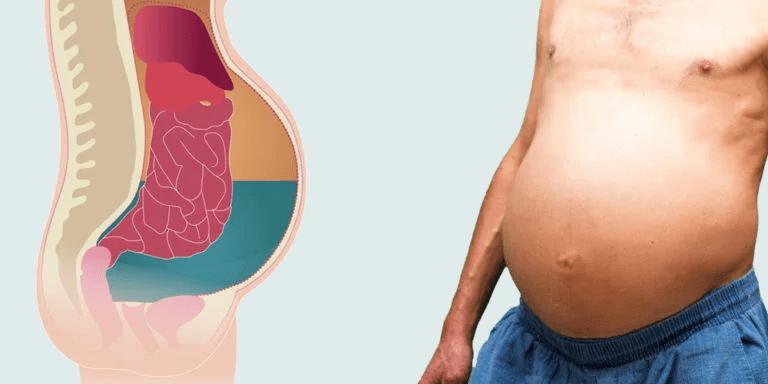 Варикозное расширение вен пищевода асцит