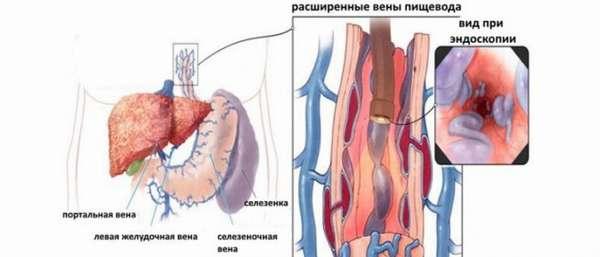Признаки варикозного расширения вен пищевода