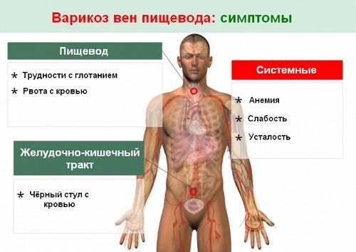 Варикоз пищевода симптомы