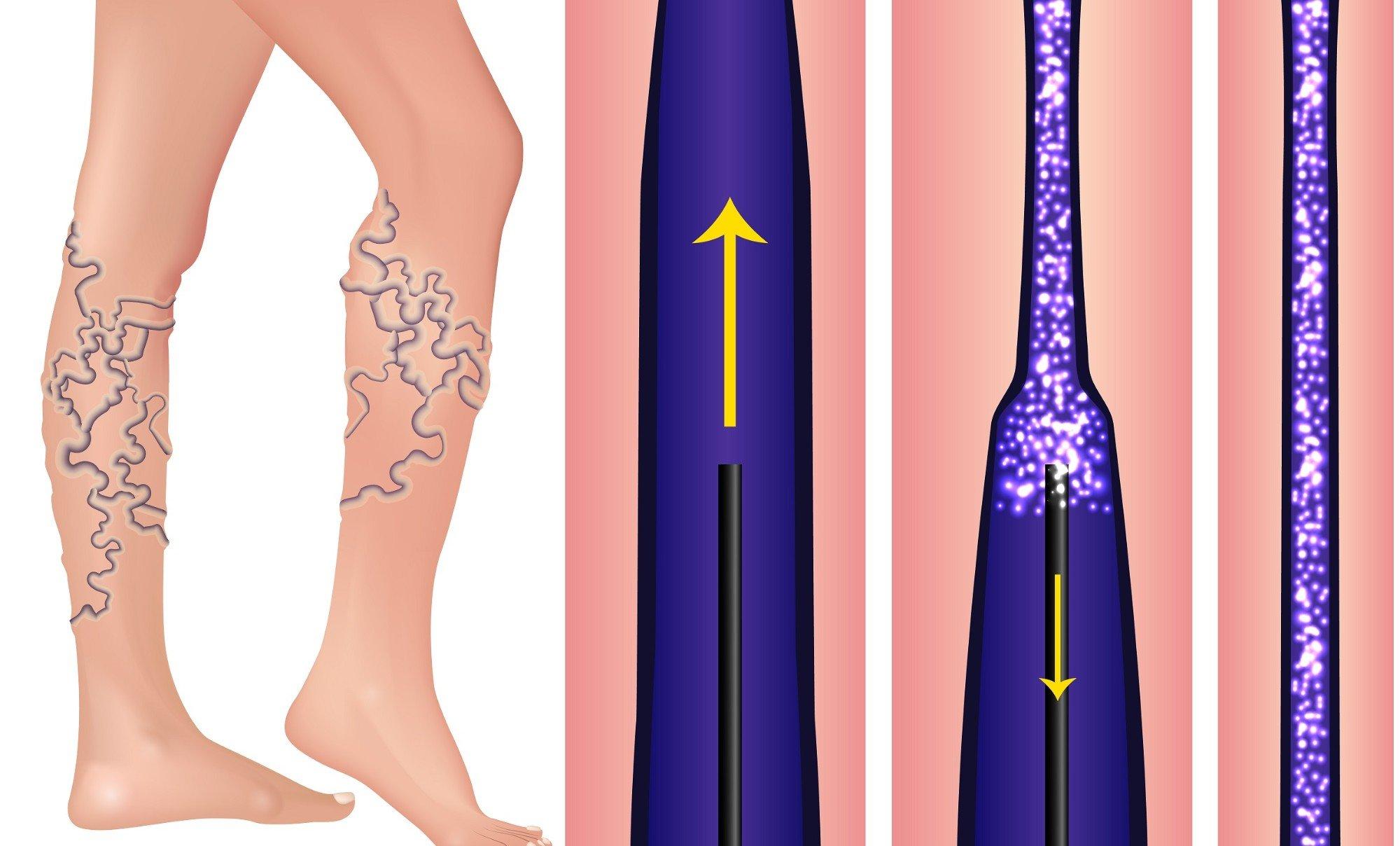 Варикозная болезнь расширение вен нижних конечностей