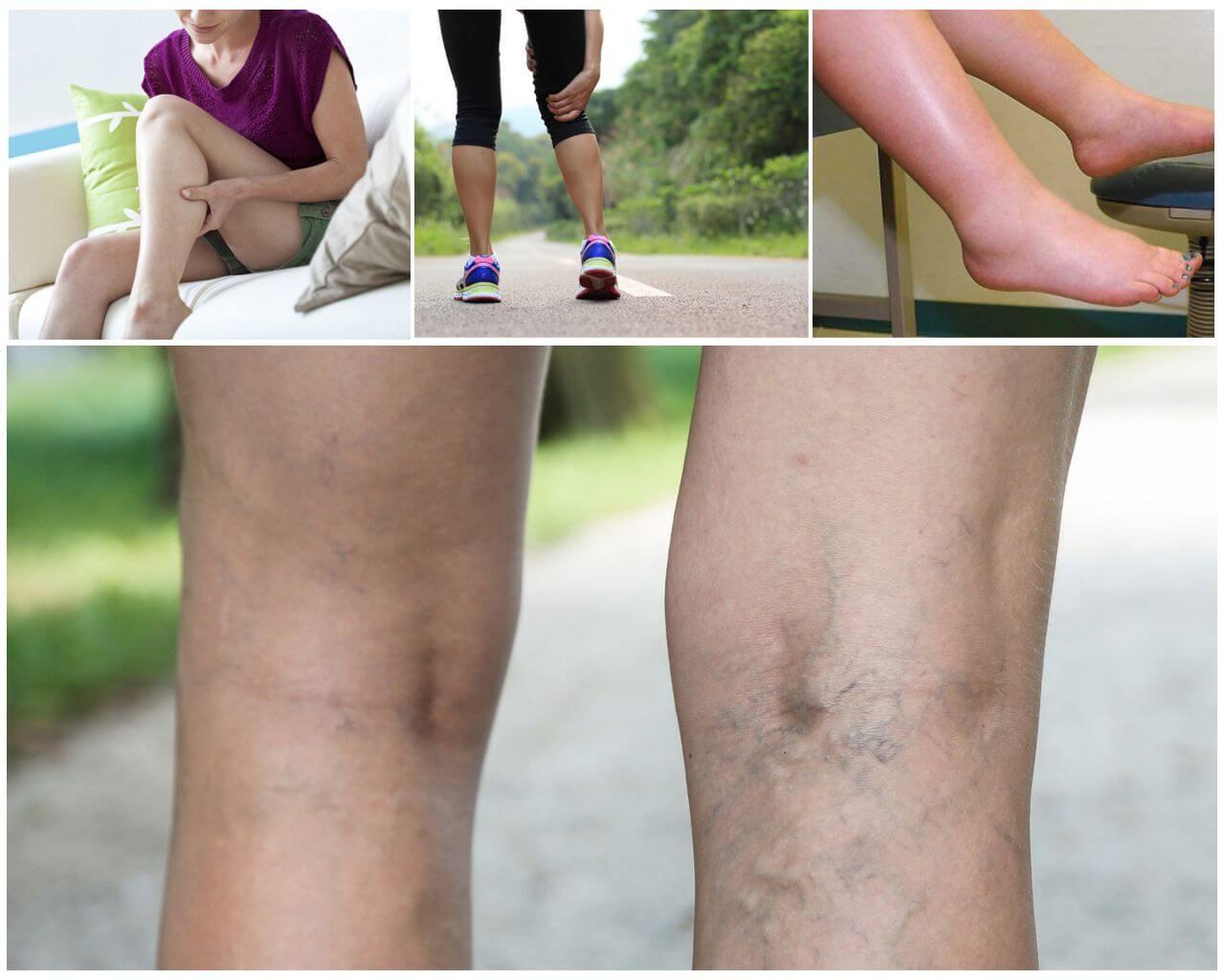 Варикозное расширение вен нижних конечностей симптомы