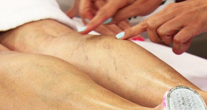 Варикозное расширение вен нижних конечностей клинические рекомендации