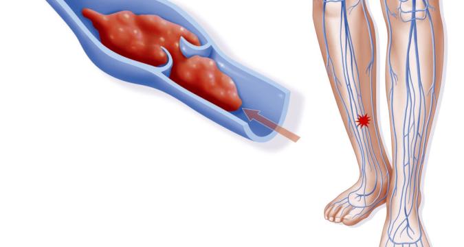 Варикозное расширение вен нижних конечностей варианты лечения