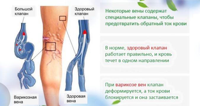 Варикозное расширение вен левой нижней конечности