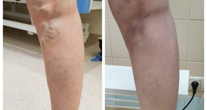 Варикозное расширение подкожных вен нижних конечностей лечение