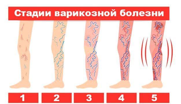 Варикоз нижних конечностей лечение народными средствами