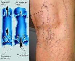 Варикоз вен нижних конечностей лечение