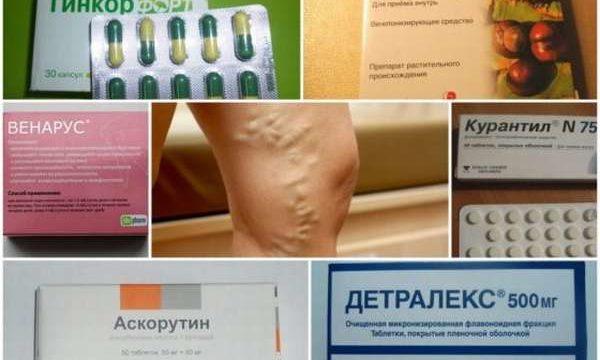 Таблетки при варикозе нижних конечностей