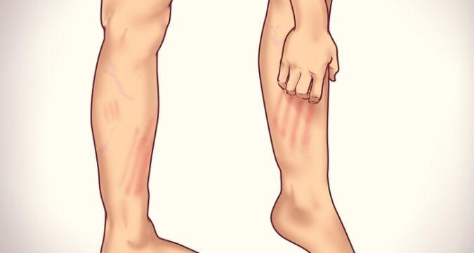 Симптомы варикоза вен на ногах