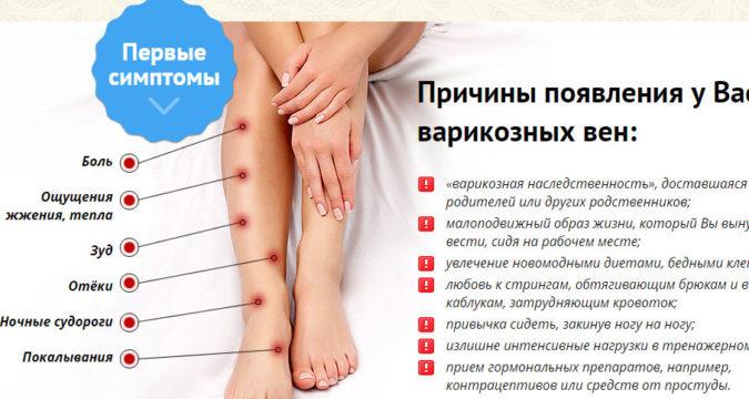 Варикоз вен на ногах симптомы и лечение