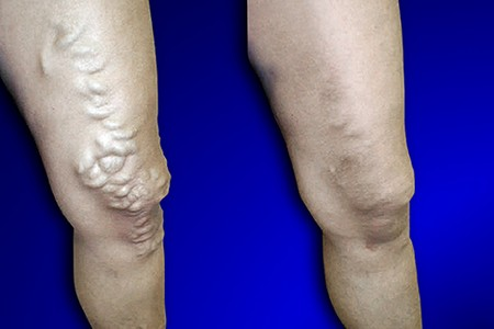 Варикоз вен на ногах после операции