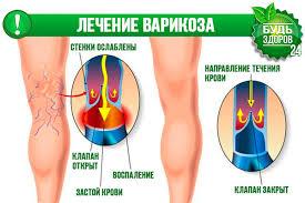 Домашнее лечение варикоза вен на ногах
