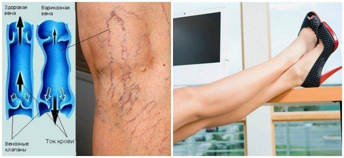 Профилактика варикоза вен на ногах у женщин