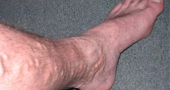 Варикоз вен на ногах у мужчин