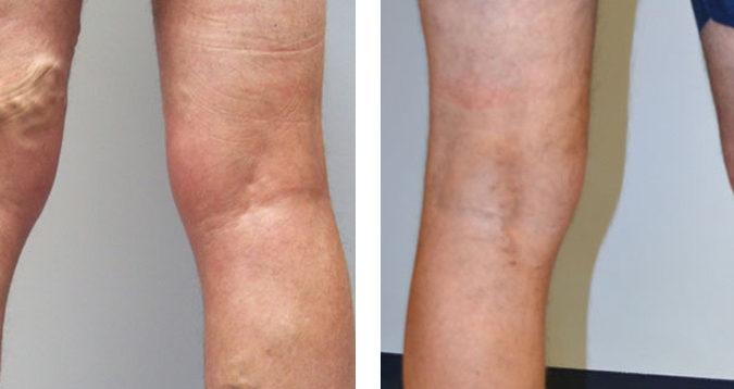 Операция удаление вены на ноге варикоз