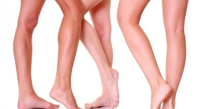 Гели от варикоза вен на ногах