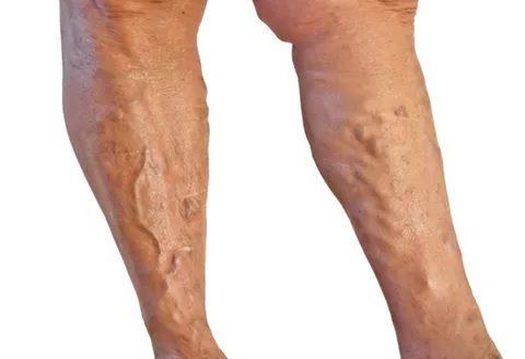 Варикоз глубоких вен ног