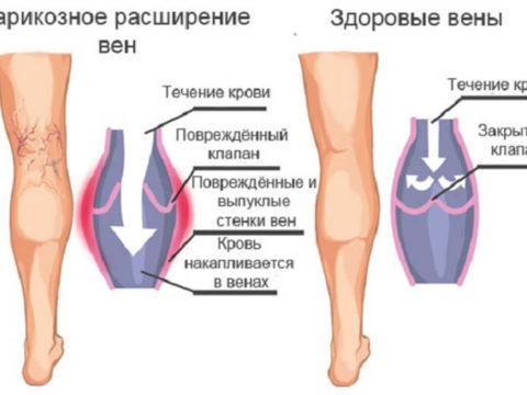 Варикоз вен на ногах болят