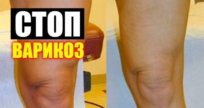 Лечение варикоза вен на ногах яблочным уксусом