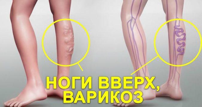 Как лечить вены на ногах при варикозе