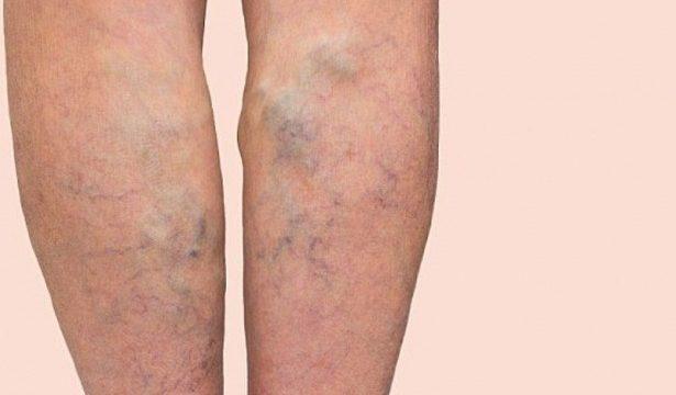 Лечение варикоза вен на ногах уксусом