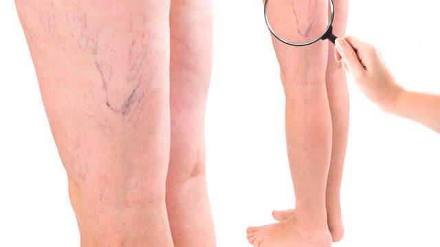 Что делать при варикозе вен на ноге