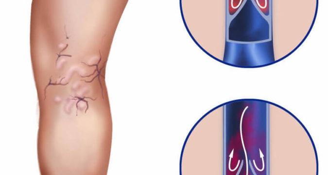 Чем лечить варикоз вен на ногах
