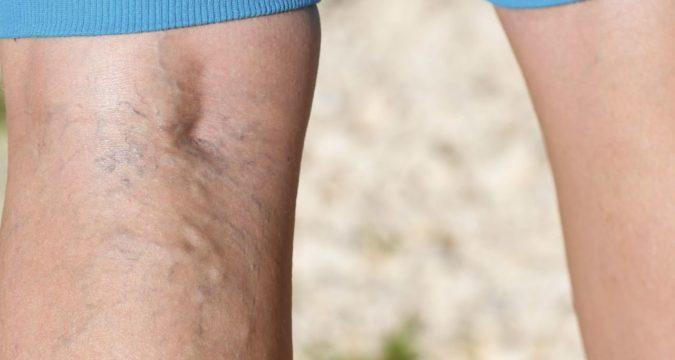 Зуд при варикозе вен на ногах