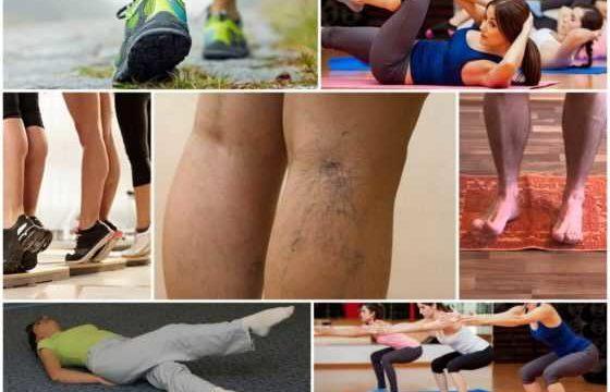 Фитнес при варикозе вен на ногах