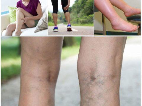 Реабилитация после операции варикоза вен на ногах