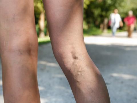 Варикоз вен на ногах причины появления