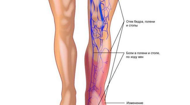 Лечение варикоза глубоких вен ног