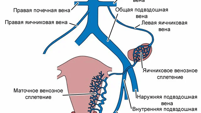 Варикоз малого таза у женщин симптомы