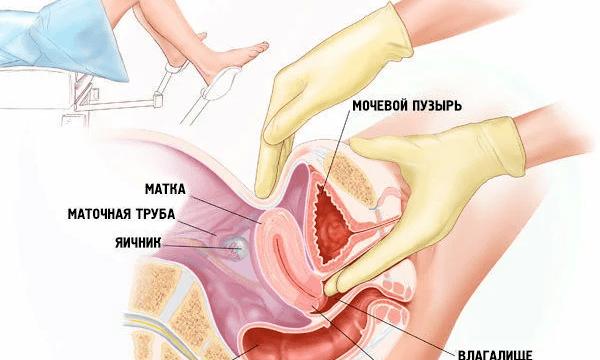 Варикоз малого таза симптомы у женщин лечение
